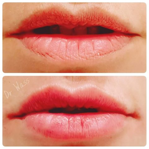 Lip Fillers in Middlesbrough